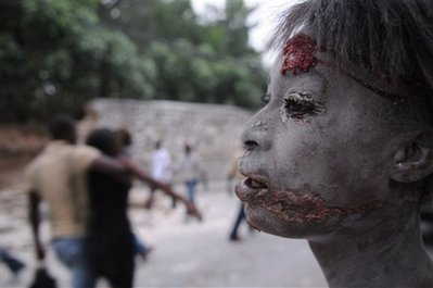 Injured Person during Haiti Earthquake